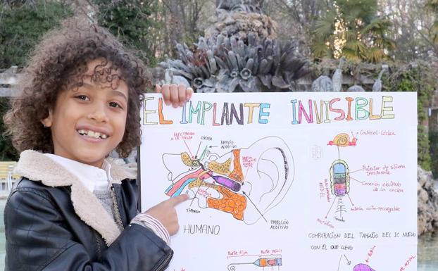 Un Niño Vallisoletano De 8 Años Inventa El Implante Auditivo